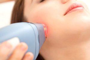 Migliori epilatori laser domestico